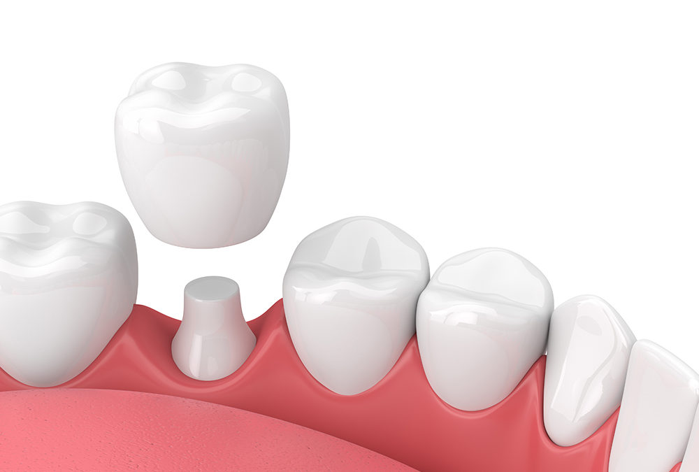 What is a Dental Crown and Do I Need One?