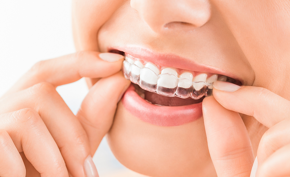 Why You Should Choose Invisalign Over Traditional Braces